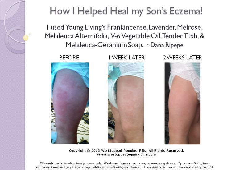 How I Helped Heal My Son S Eczema Essential Oils