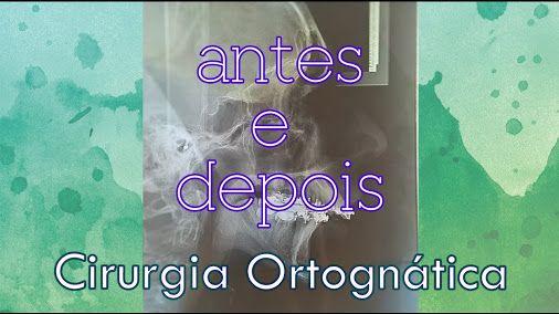 Oi pessoa, veja o antes e depois da minha cirurgia ortognática, me digam o que acharam da diferença hein....http://youtu.be/usdiVb1rO0s