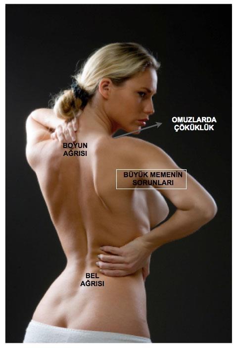 Büyük memelerin estetik ve beden sağlığı üzerine 10 kötü etkisi  1. Sırt ve boyun ağrıları  2... pinned with @PinvolveLove