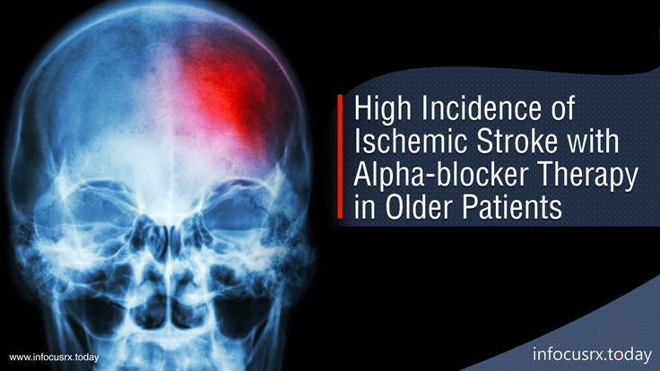 Study shows high incidence of Ischemic Stroke with Alpha-blocker Therapy found in Older Patients.