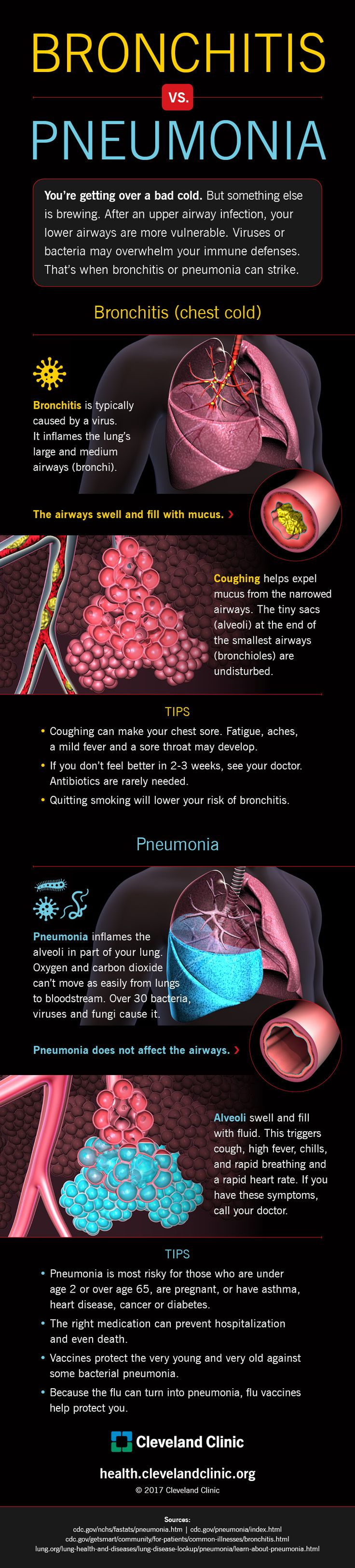 17-HMED-2261-Bronchitis-vs-Pneumonia-Infographic-FNL