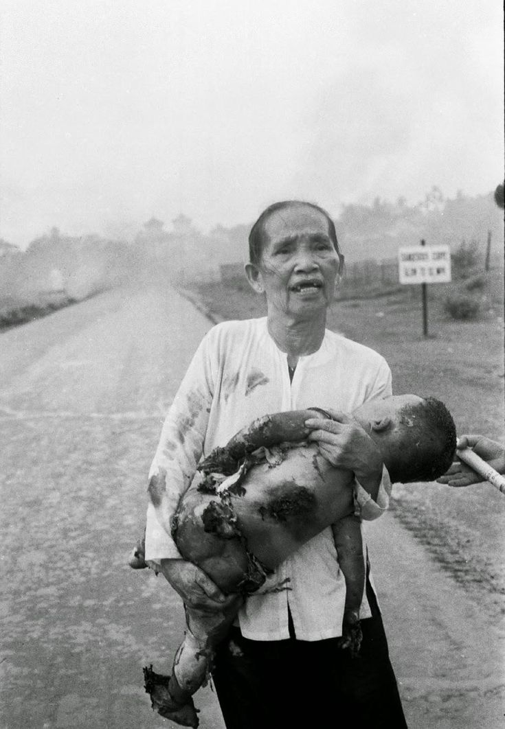 A Vietnamese grandmother carries her severely burned one-year-old grandson after a misdirected napalm attack, 1972
