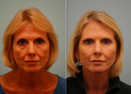 Facial Stimulation Exercises For An Invigorated Facial Skin