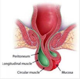 rectal prolapse treatment