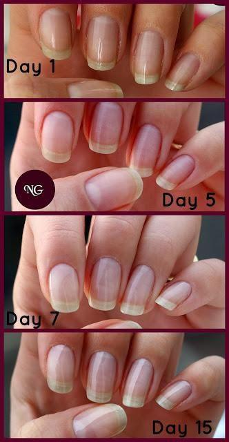 Trind Natural Nail Repair and Nail Balsam - After 2 weeks of use ...