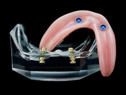 proteze dentare pret