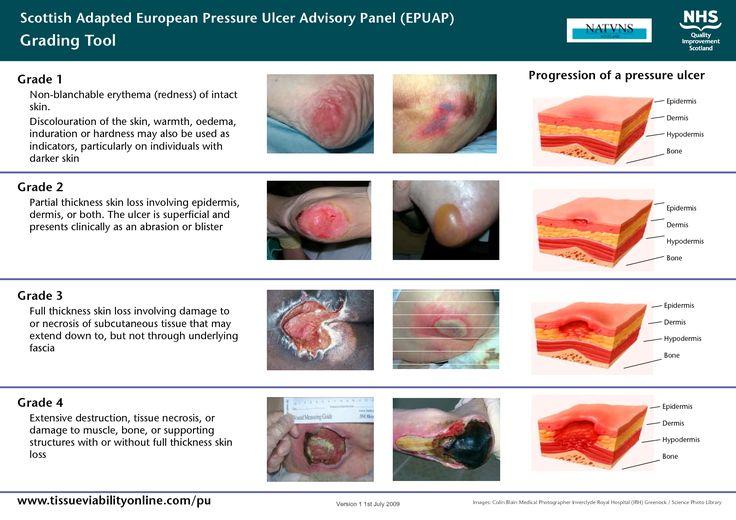 ulcer classification | Scottish Adapted European Pressure Ulcer Advisory Panel (EPUAP