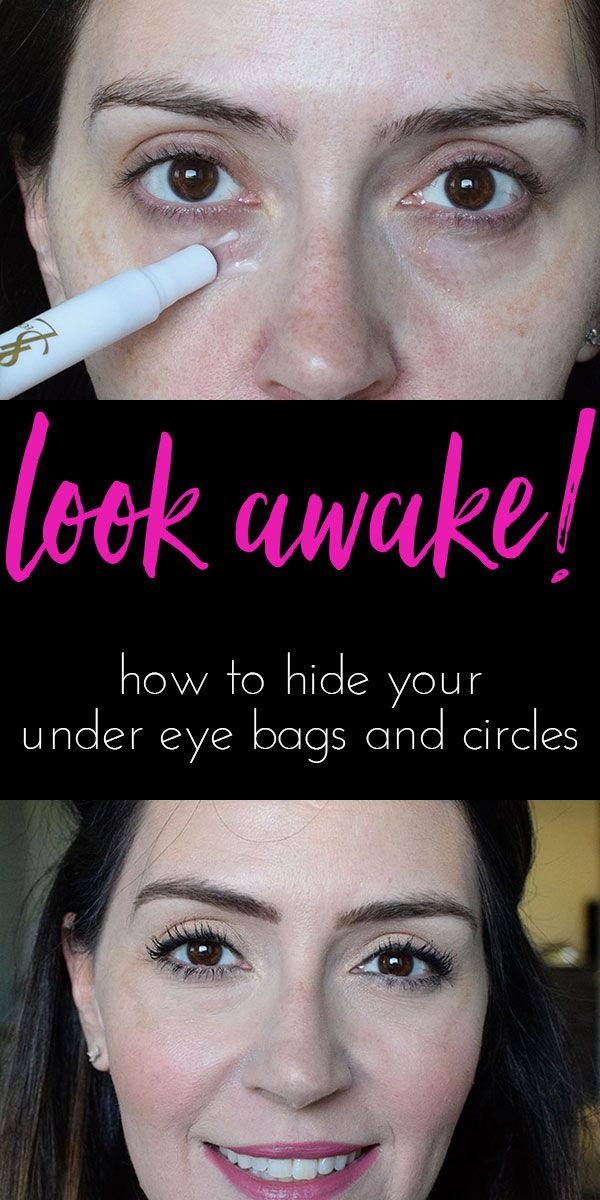 How to Look Awake Covering Your Under Eye Bags and