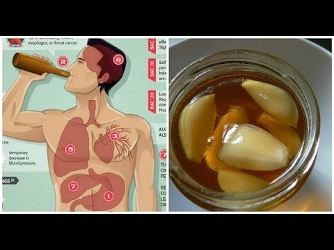 If You Eat Garlic And Honey On An Empty Stomach For 7 Days This Is What Happens To Your Body http://homeremediestv.com/if-you-eat-garlic-and-honey-on-an-empty-stomach-for-7-days-this-is-what-happens-to-your-body/ #HealthCare #HomeRemedies #HealthTips #Remedies #NatureCures #Health #NaturalRemedies  Heres What Happens To Your Body If You Eat Garlic And Honey On An Empty Stomach For 7 Days SUBSCRIBE TO OUR CHANNEL  Related Post  If You Eat Garlic and Honey On an Empty Stomach ... One of most…