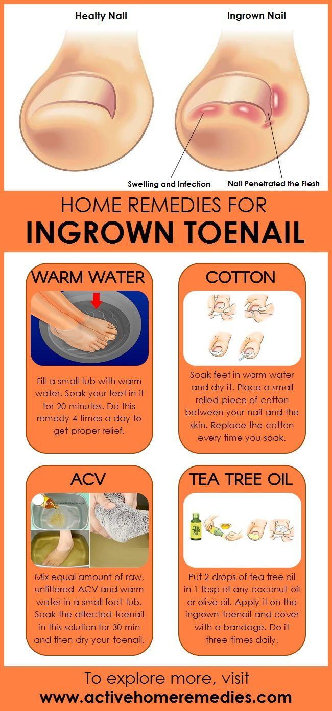 Home Remedies for Ingrown Toenails   home remedies   Ingrown toe ...