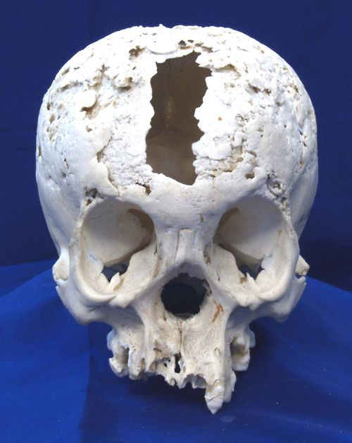 19th century cranium with caries sicca caused by the gummatous lesions of syphilis. This is an extreme example of tertiary syphilis (neurosyphilis). Pitted lesions erode, heal and scar over many years and infection of the brain and other parts of the body along with advanced dementia would have also occurred.