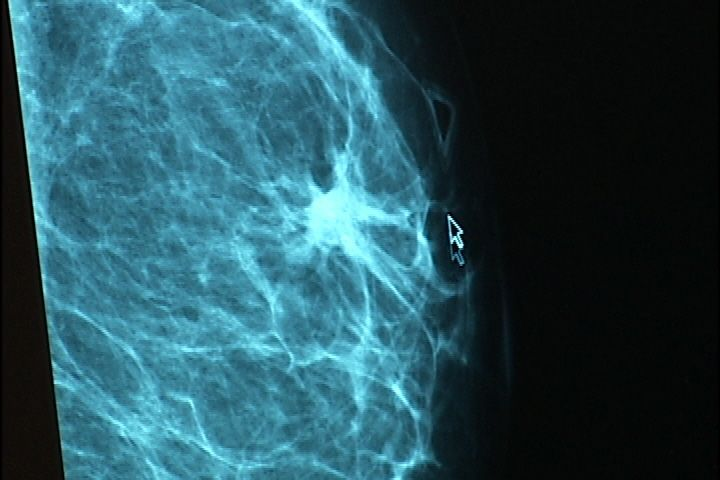 how to tell if you have dense breast tissue