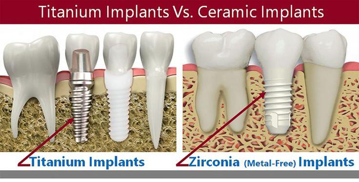 Dental Implants Total Care Dental Holistic Dentistry