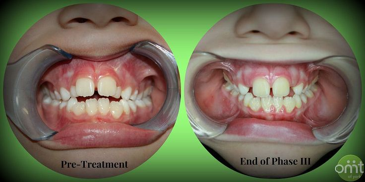 Orthodontic Appliances To Prevent Thumb Sucking