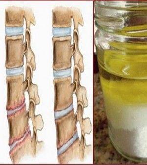 só és olaj keveréke nyaki fájdalomra