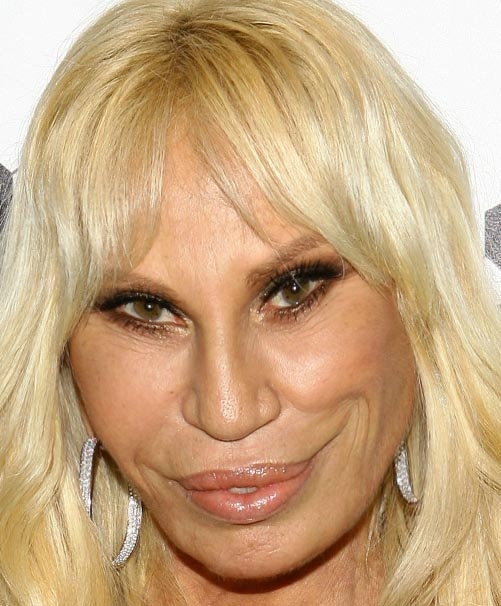 8 WORST Celebs Changed Drastically After Plastic Surgery ...