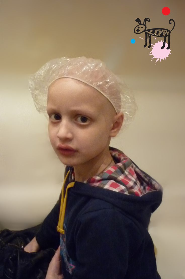 Alopecia totalis in children. Little 'Greenhouse'. Waiting for hair to pop up)