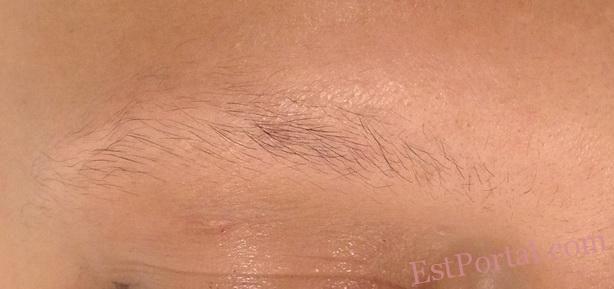 Потеря волос - серьёзная возрастная (да и не только) проблема. С ней сталкиваются в первую очередь мужчины. Появление лысины редко входит в планы и далеко не всем к лицу. Альтернативой хирургической пересадке волос может стать трихопигментация. http://estportal.com/trixopigmentaciya/  #EstPortal #эстетическийПортал #татуаж #трихопигментация #алопеция #стилистика