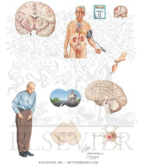 Lewy body dementia, visual hallucination, repeated syncope, parkinsonism features