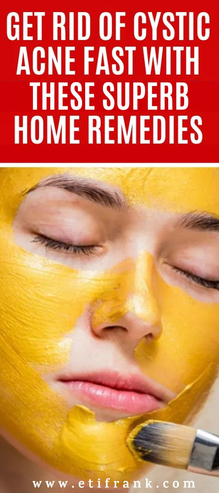GET RID OF CYSTIC ACNE FAST WITH THESE SUPERB HOME REMEDIES