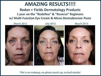 """With Rodan + Fields, you can have great results using products while doing something you normally do everyday -- washing your face! She used both the REVERSE Regimen REDEFINE Regimen along with the Micro-Dermabrasion Paste and Multi-Function Eye Cream. The products even come with instructions on how to """"ramp up"""" your skin care routine to ensure you have the best possible results. Let's get started on your great Before & After!"""