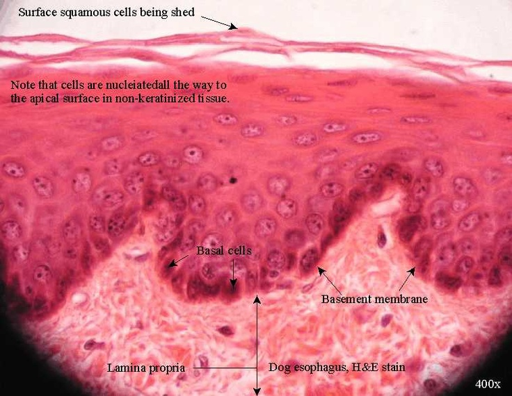 Stratified Squamous Epithelium Non-Keratinized (esophagus), 1st 1/3 skeletal muscle, last 1/3 smooth muscle
