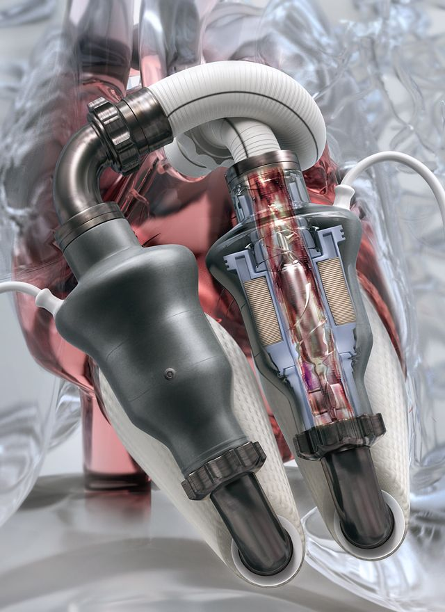 Artificial Heart - kollected