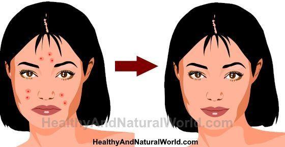 Das Auftreten von Pickeln Akne auf der Haut kann von Ärger bis zu einem traumatischen Erlebnis reichen. In diesem Artikel erfahren Sie, wie Sie Pickel loswerden. #SkinRemediesDiscoloration