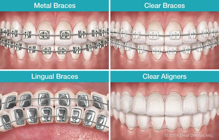 Types of Braces: To meet the needs of patients, there are different types of braces available. Brackets -- the part that attach to each tooth -- can be clear, tooth-colored, or multi-colored. They can even be attached to the back of the tooth so they are