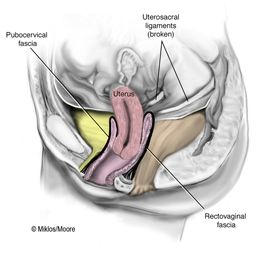 Uterine Prolapse Picture – The uterus begins to prolapse or drop because of the broken uterosacral ligaments