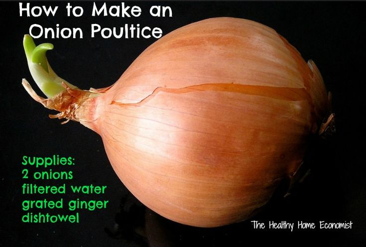Chest congestion? Don't just run to the doctor for meds. You can relieve it with a simple onion poultice like what was used in the old days prior to antibiotics.  http://www.thehealthyhomeeconomist.com/make-and-use-onion-poultice-for-congestion/