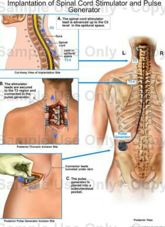 <3 Spinal Cord Stimulator ~ My New Boyfriend~ Kimberly Stanley