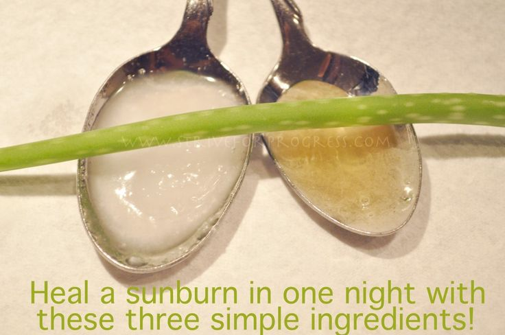 heal a sunburn in one night with coconut oil, honey, aloe vera