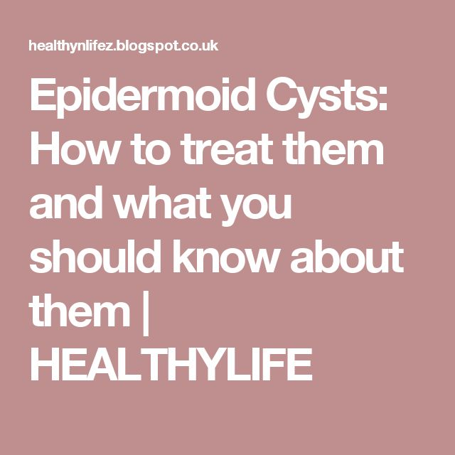 Epidermoid Cysts: How to treat them and what you should know about them | HEALTHYLIFE