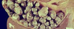 Esta poderosa receta ha ayudado a muchas personas. El médico chino Dr. Lai Chiu Nan se le ocurrió un remedio totalmente natural para eliminar las piedras de la vesícula biliar. Anuncios Los cálculos biliares o piedras en la vesicula causan dolor, ictericia, e incluso el cáncer. Dr. Lai dice que el cáncer no es la primera enfermedad …