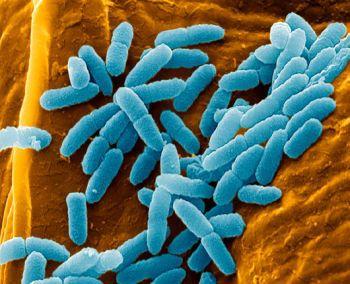 best 25+ pseudomonas aeruginosa ideas on pinterest | microbiology, Skeleton