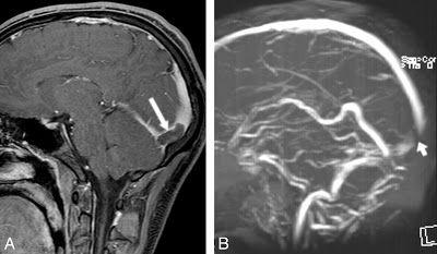 Κωνσταντίνος Χ. Δαβανέλος: Εγκεφαλική φλεβική θρόμβωση.