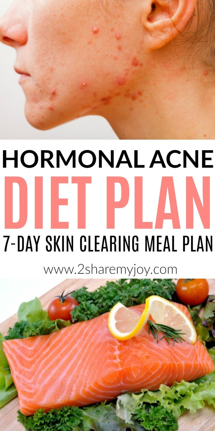 Are confused about how to eat when you suffer from acne? Does it seem like everything could cause acne? Are you wondering why your hormones are so out of balance? Try his gluten free, dairy free, sugar free meal plan and clear up your hormonal acne for good! 7-day hormonal acne diet plan: Best diet plan for clear skin. Find your acne triggers and learn how to eat when you suffer from hormonal acne. This is the best diet plan for acne!