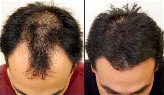 Pourquoi les hommes perdent leurs cheveux ?!!