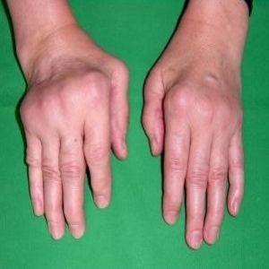 Best Natural For Arthritis Treatment