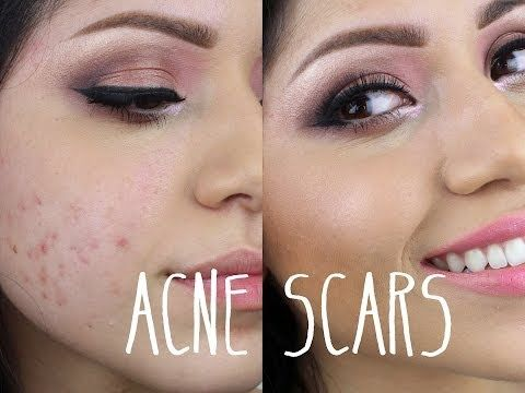 maquillaje acne