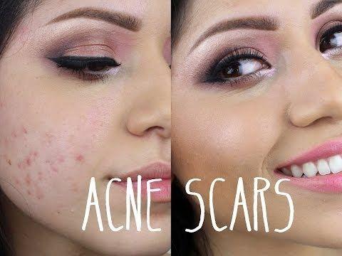 maquillaje acne