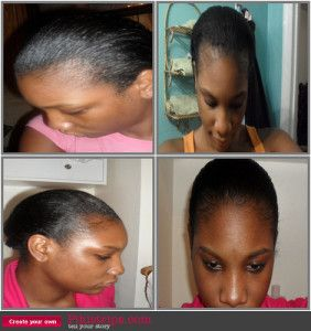 For those of you who are struggling with thin edges there is hope! For years I have been struggling with my thin hairline and for a long time I just gave up and accepted my bald edges. I thought, b…