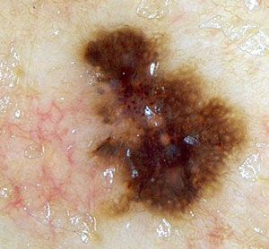Seborrheic Keratosis Home Remedies-These un-explainable growths are nothing really to worry about but are removed because of cosmetic preferences.  If you're looking to fade or remove these on your own, try some home remedies. #skin #remedies