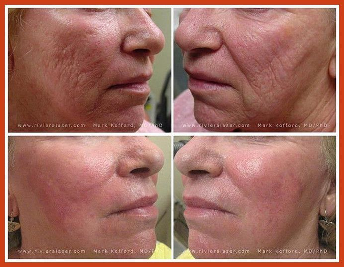 Acne Scar Removal - Acne Scar Removal Surgery May Not Be A Good Alternative ** More details can be found by clicking on the image. #HowToCoverUpAcneScars #AcneScarsTreatment