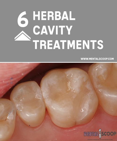 6 Herbal Cavity Treatments Ah cavities, the bane of existence for every candy crunching kid who p...