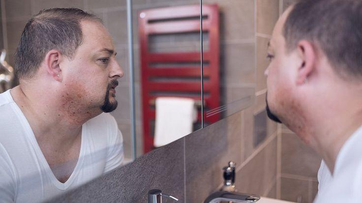 Besonders Männer mit zu lockigem Haar neigendem Bart kennen dieses unschöne Problem: Eingewachsene Haare. Wir haben Tipps für dich, wie du eingewachsenen Barthaaren den Kampf ansagst. #blackbeards #Nassrasur #Barthaare #Eingewachsen #Bart #Beardcare #Bartpflege Onlineshop: www.blackbeards.de