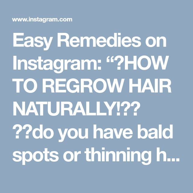 """Easy Remedies on Instagram: """"HOW TO REGROW HAIR NATURALLY! do you have bald spots or thinning hair thats falling out? then you NEED to try this EASY and CHEAP…"""" • Instagram"""