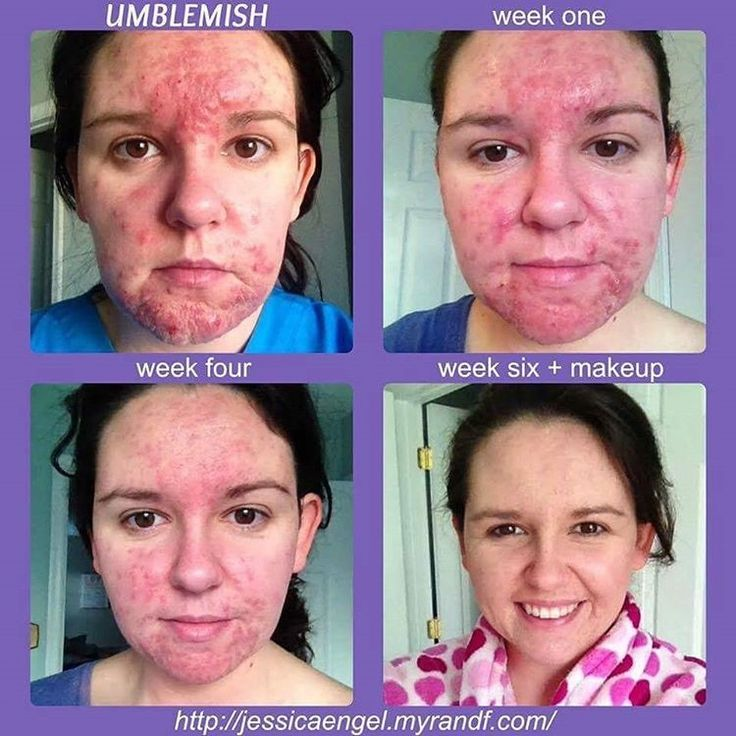 These are real people with real results using UNBLEMISH Rodan+Fields! Visit https://sharinnoble.myrandf.com/ to shop the products so you can have your breakthrough! I care about your before and after! #RodanandFields #rodanandfieldscanada #rodanandfieldsaustralia #RFAustralia #RFCanada #skingoals #onfleek #1antiagingbrand #2inAmericaforskincare #1antiacnebrand #unblemish #breakouts #pimples #blackheads #itsyourtimenow #lifechangingskincare #rfroadto1 #mompreneur#bossbabes #getmoney
