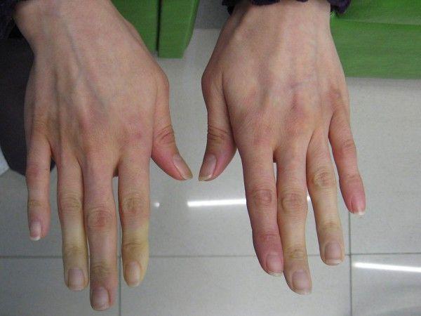 les signaux que vous envoie votre corps : Les mains et les pieds froids sont beaucoup plus qu'une mauvaise circulation